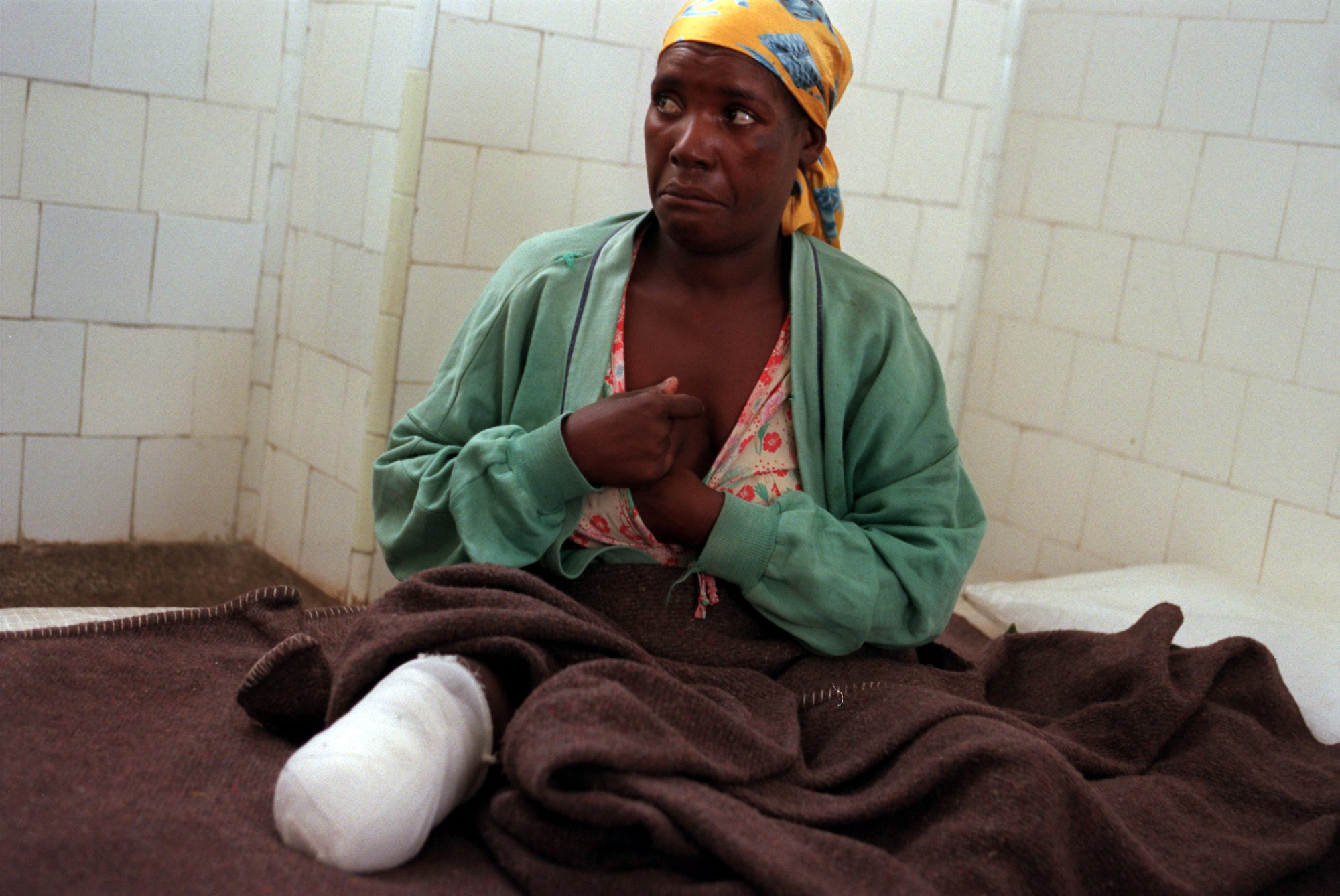 Huambo Land Mine Victim