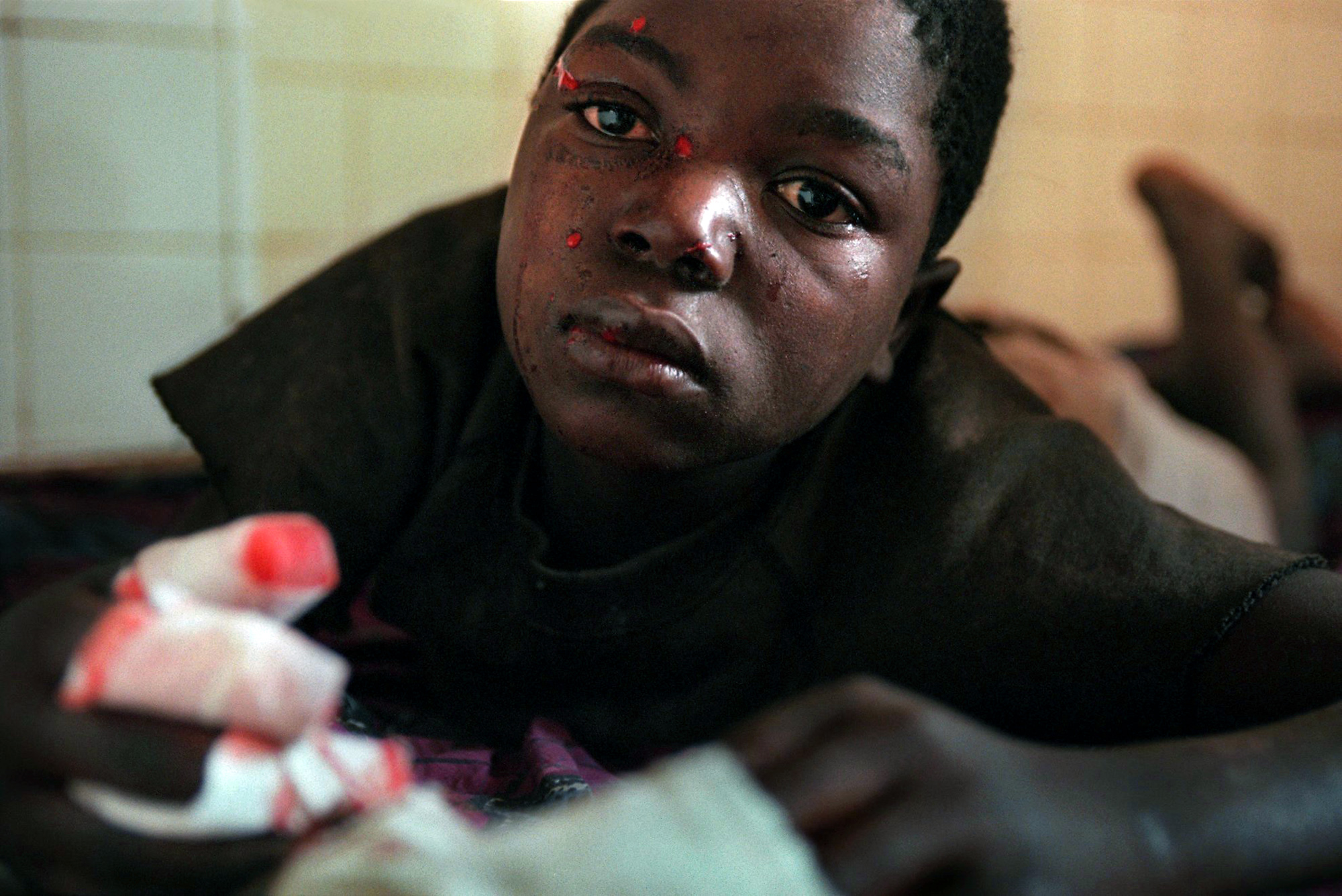 Malanje Child Land Mine Victim